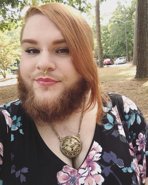 26-летняя девушка на протяжении 10 лет брила лицо и тело, чтобы избавиться от нежелательной растительности Она страдает от редкого синдрома, который провоцирует избыточный рост волос на лице и