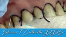 Impression Cord Placement for Veneers Dental Minute with Steven T Cutbirth DDS