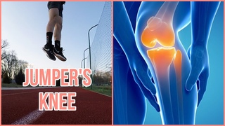Knee Pain From Volleyball? How To Fix It