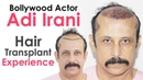 Bollywood Actor Adi Irani Shares Hair Transplant Experience with Dr Suneet Soni | Medispa India