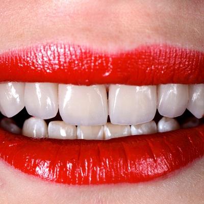 Ноу-хау косметической стоматологии: виниры в 2019 году