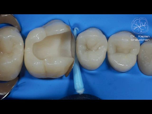 DentalПлюшки 11 адаптация матрицы
