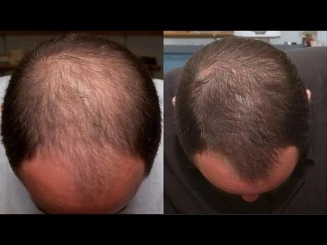 Миноксидил от выпадения волос Лечение облысения миноксидилом Результаты и отзывы о миноксидиле