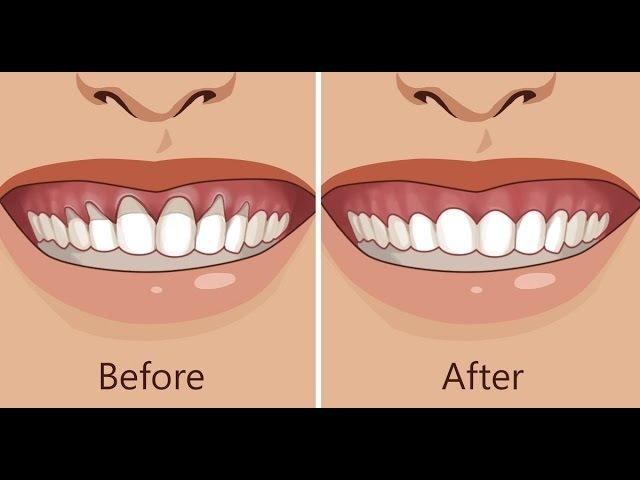 Receding Gums Treatment! Works Fast! Fix Gum Recession Subliminal Subconscious Hypnosis Binaural Bea