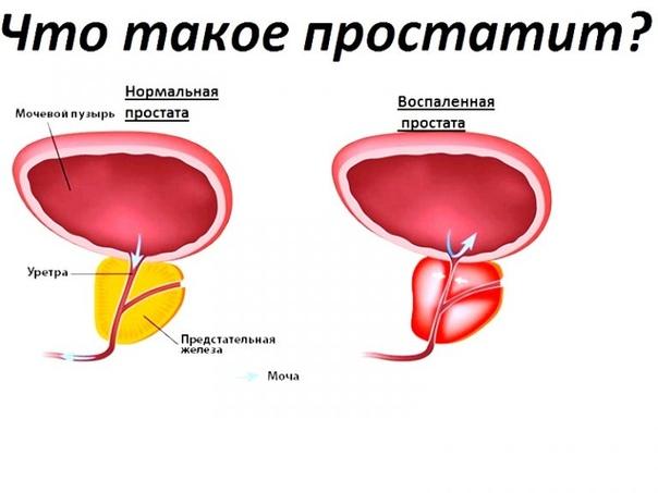 Жизнь с простатит бывает температура от простатита