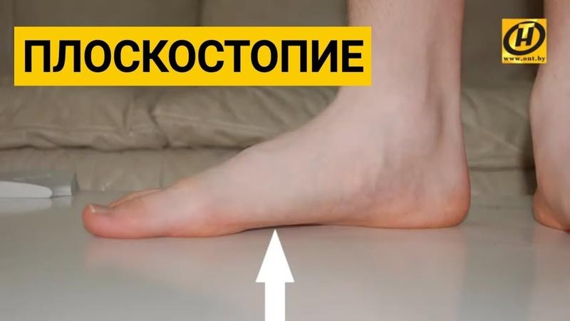 Продольное плоскостопие. Лечение и упражнения для укрепления стоп от Мелитины Станюты