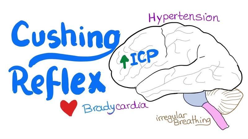 Cushing Reflex intracranial hypertension