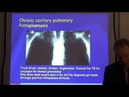 Diagnosis and treatment of chronic pulmonary aspergillosis