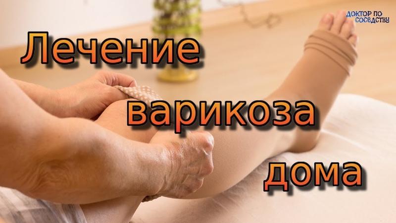 ЛЕЧЕНИЕ ВАРИКОЗА В ДОМАШНИХ УСЛОВИЯХ TREATMENT OF VARICOSE VEINS AT HOME