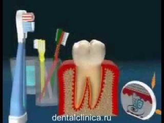 Лечение зубов имплантация эстетическая стоматология в Будапеште доступные цены красивые улыбки экспресс терапия ортодонтия дентальный туризм