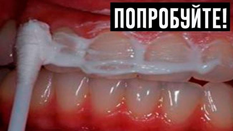Жена стоматолога научила меня устранять зубной камень и отбеливать зубы за 4 минуты!